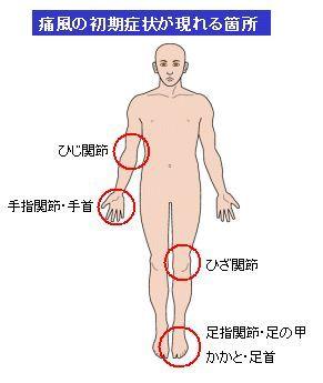 痛風の初期症状
