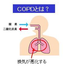 COPD(慢性閉塞性肺疾患)とは