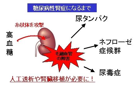 j糖尿病性腎症の原因と症状