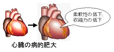 心臓の病的肥大