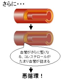 動脈硬化の悪循環